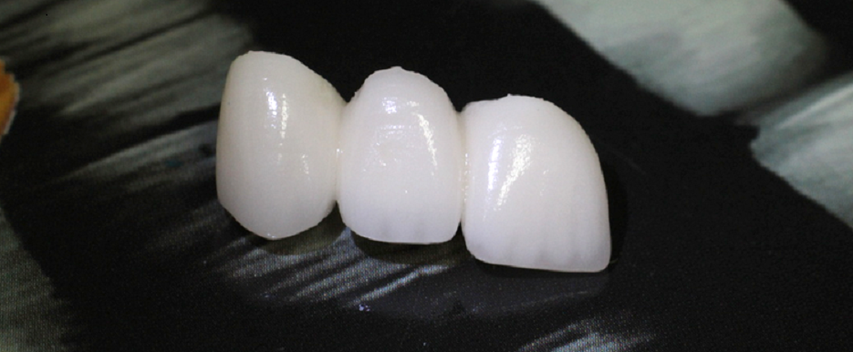 Br. Broggi crown Teeth